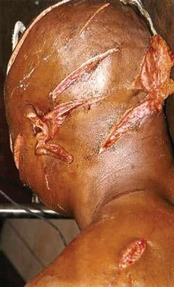 Victim-Fulani.jpg