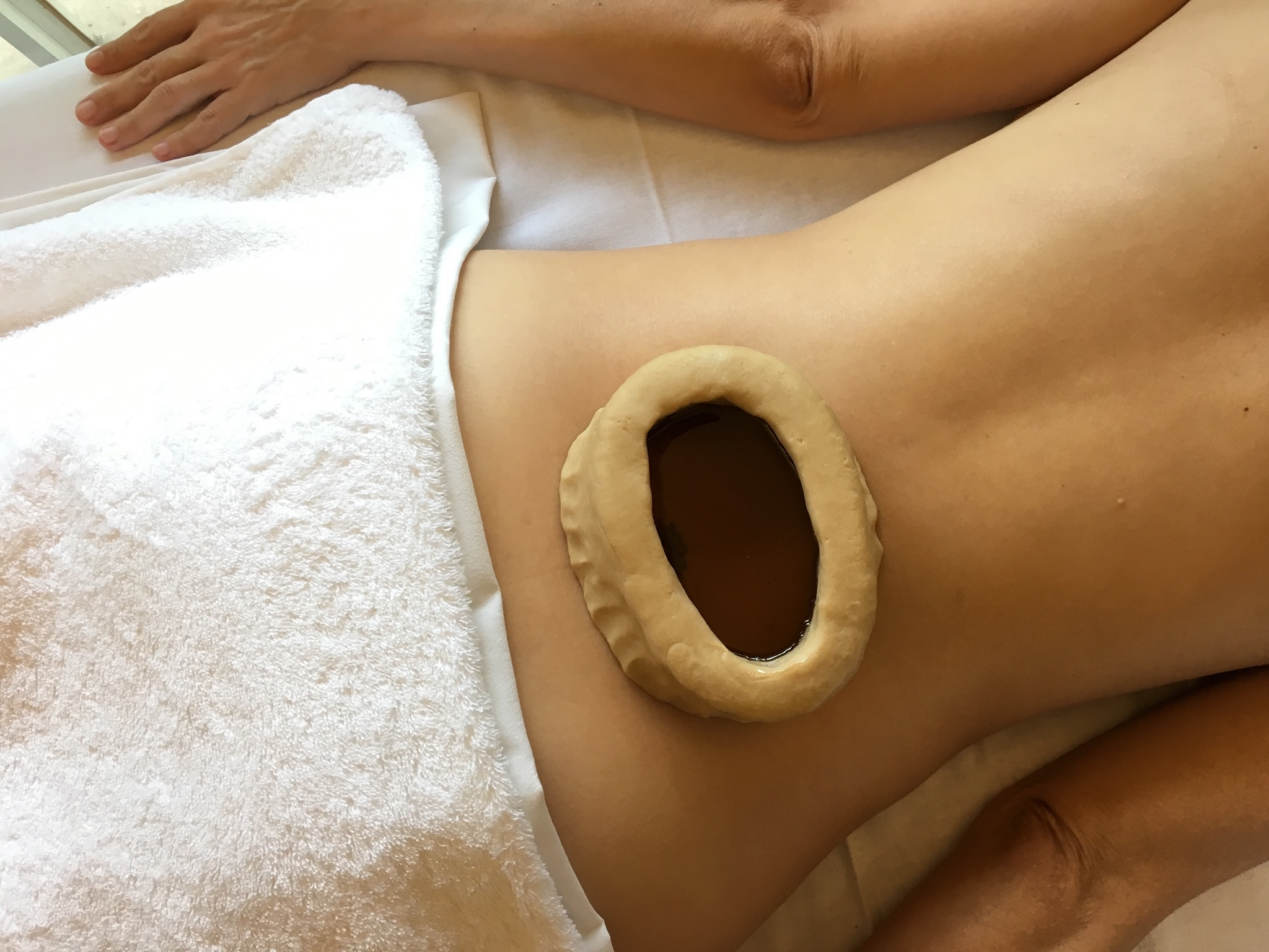 kati basti - low back ayurvedic treatment