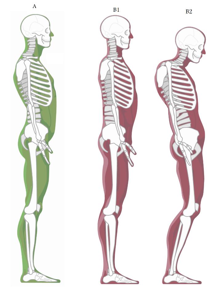 posture pics.png