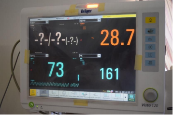Current neonatal ward vital display with lack of context
