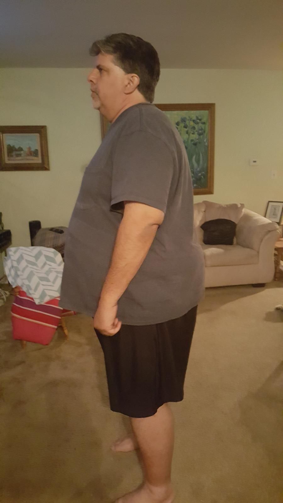 Before: 393 lbs