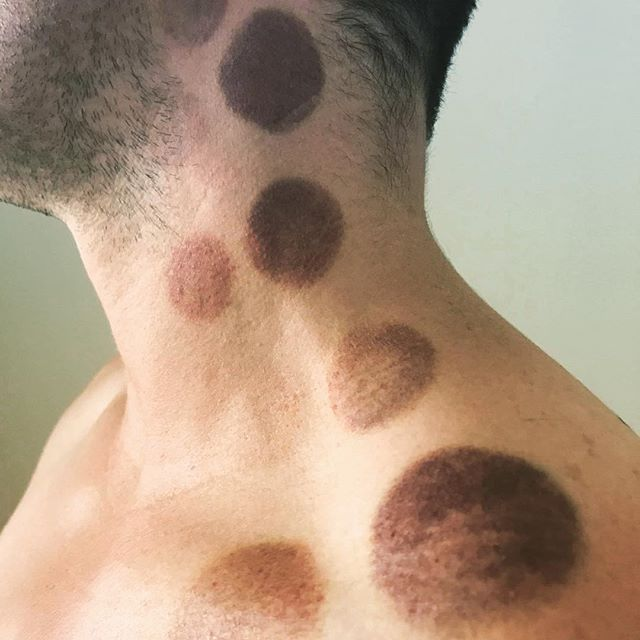"""We all know the saying """"Ive get a kink in my neck"""" #pureactivation #cupping #newyear #2019 #christchurch"""