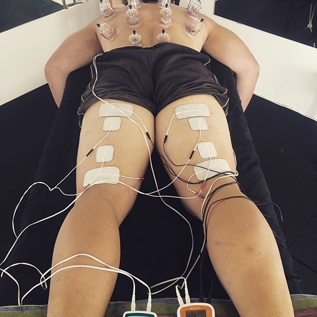 Big Boys need Double Power!! 🤘🏻#pureactivation #ems #stimulation #cuppingtherapy #cupping #cuppingmassage #neuromusculartherapy #hamstrings #hamstringsworkout