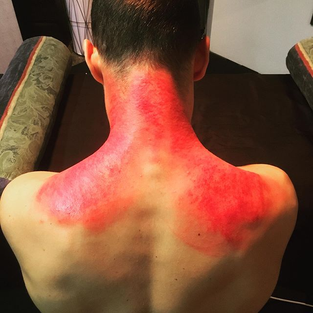 Fire Shoulders #GuaSha #pureactivation #myofascialpain #myofascialrelease