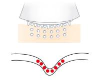 Fase 2  Hyaluronzuur wordt ingebracht en vult en lift de huid van binnenuit.