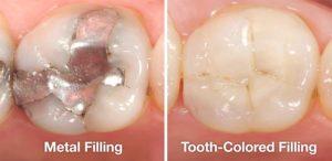 metal-vs-tooth-colored-fillings-300x146.jpg