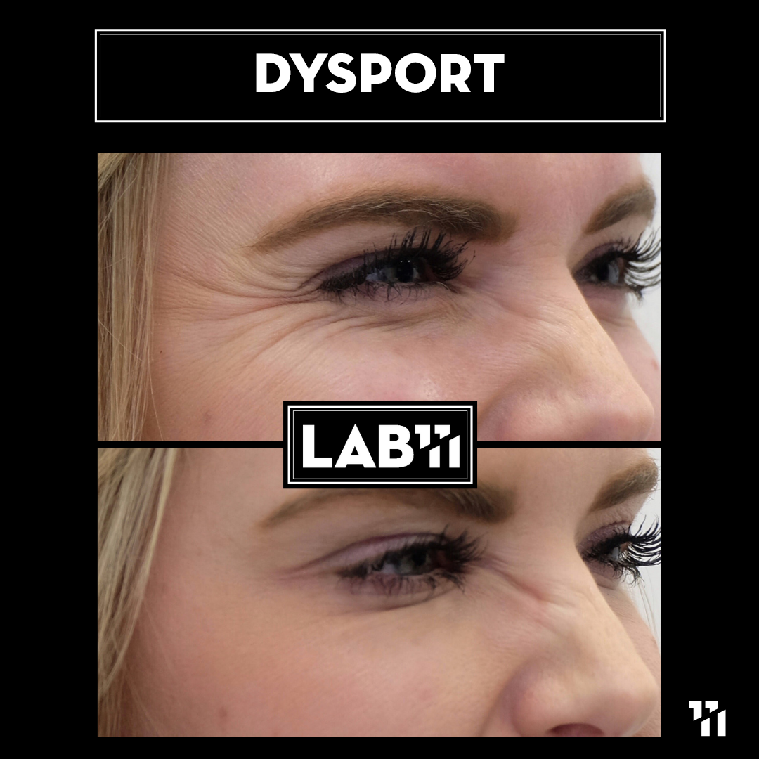 Dysport.png