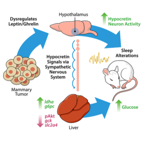 Tumors alter leptin/ghrelin signaling, which results in aberrant activation of hypothalamic hypocretin/orexin neurons. This promotes poor sleep, and changes in glucose metabolism via the sympathetic nervous system. (from:    Borniger et al., 2018   )
