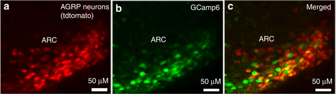 AgRP neurons in the arcuate nucleus expressing the calcium indicator GCaMP6. These cells are powerful regulators of feeding behavior and metabolism  ( Credit: Srisai et al., 2017 ;  Nature Communications )