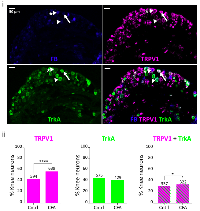 Neurons projecting to the inflamed knee ('knee neurons' labeled with FB) from the dorsal root ganglion expressed a much higher amount of the capsaicin receptor (TRPV1), without changes in the receptor for    Nerve Growth Factor    (a molecule associated with increased neural sensitivity; TrkA)  (Credit: Chakrabarti et al., 2018;  Neuropharmacology )