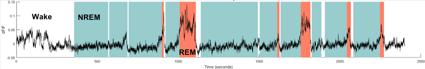Example of a fiber photometry trace showing the activity of GABA neurons across sleep-wake states. As you can see, these neurons are mostly active during wakefulness and REM sleep compared to NREM sleep (wake = white background, NREM = blue, REM = red)  (Credit: Jeremy C Borniger, PhD, Stanford University)