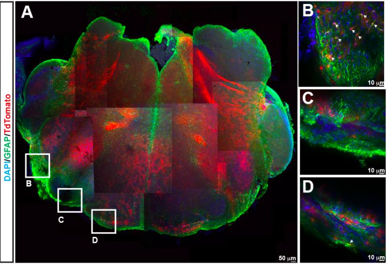 PHOX2B-derived brainstem astrocytes contribute to chemosensory control of breathing and sleep homeostasis.
