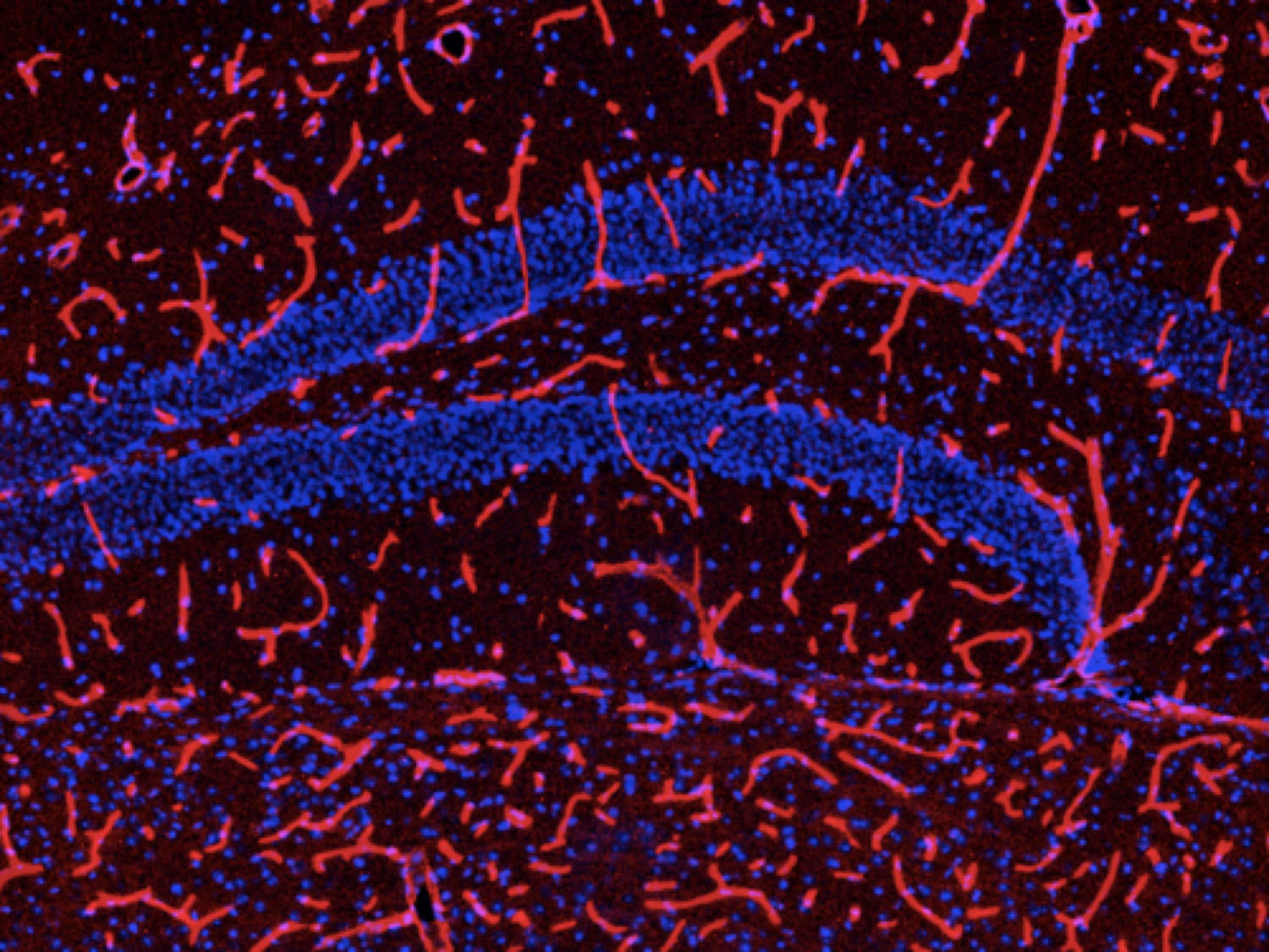 Our paper demonstrates that low levels of light at night influence the expression of vascular endothelial growth factor (VEGF) and its receptors, along with cytokine mRNA, in the murine hippocampus. Pictured above is DyLight-594 labeled tomato lectin (red), which labels all active capillaries in the brain (Credit: JCB)