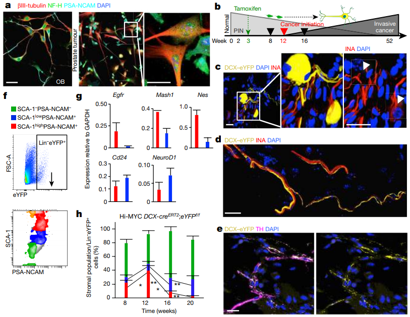 Figure 3: Neural progenitors in the prostate differentiate into adrenergic neurons during tumor development. (   Credit:       Mauffrey et al., 2019)