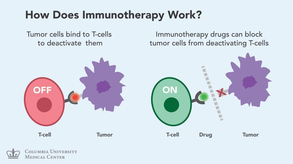 Cancer immunotherapy works by blocking 'don't eat me signals' expressed by tumor cells.  These signals (e.g., PD-L1) normally act to suppress adaptive immune responses, allowing cancer cells to escape destruction. If we block these signals, the immune system is no longer suppressed, and can recognize and kill the tumor.
