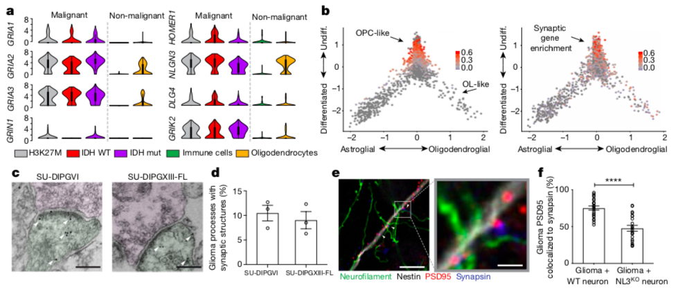 Figure 1:  Evidence for functional synapses between neurons and brain tumor cells. In (a) we can see that the expression levels of synapse-related genes (GRIN1, GRIA1,2,3, GRIK2, DLG4, NLGN3, HOMER1) are highly enriched in malignant vs. non-malignant tissues from cancer patient samples. In (b) the data are arranged to see the lineage (x axis) and stemness (y axis) of cells from primary patient samples. In (c) we can see physical signs of synapses using electron microscopy in a human (left) and mouse (right) brain tumor. In (e) and (f) the researchers found signs of synaptic transmission in glioma by labeling the protein post-synaptic density-95 (PSD-95) and synapsin. (Credit: Venkatesh et al., 2019).