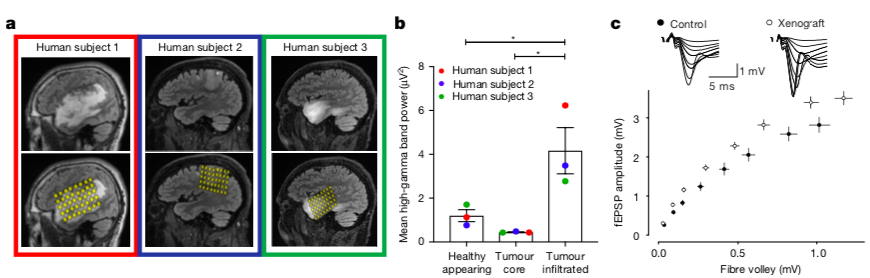 Figure 4 : Neurons are extra-excitable in the glioma-infiltrated human brain! (Credit: Venkatesh et al., 2019).