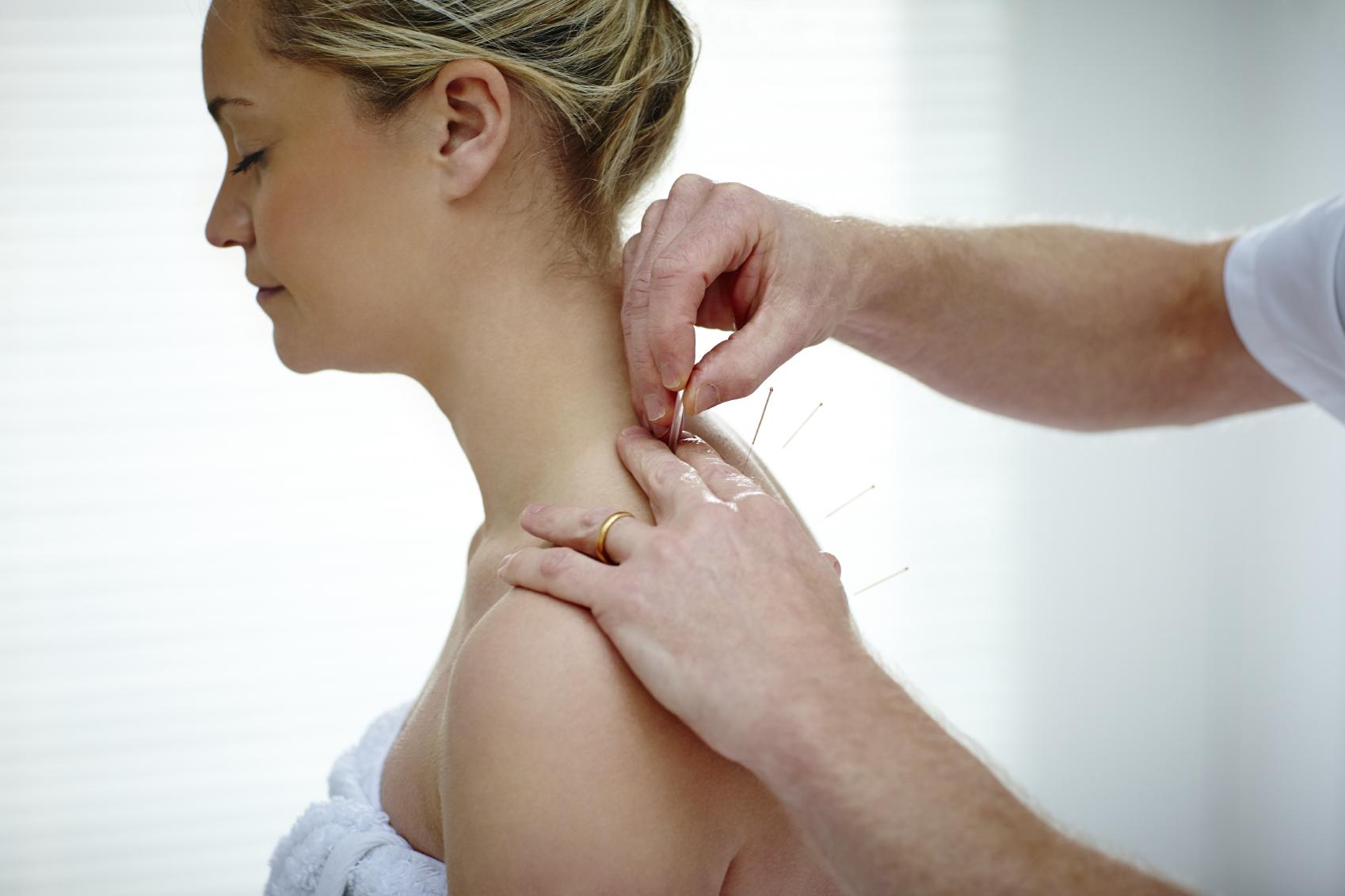 acupuncture - neckshoulders.jpg