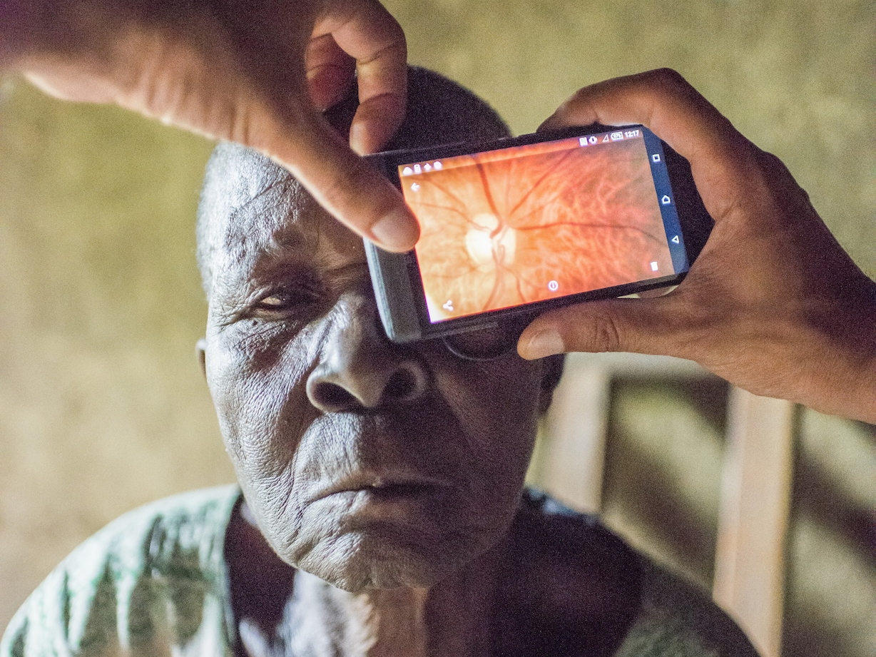 A patient with a smartphone held to their eye showing an image of their retina