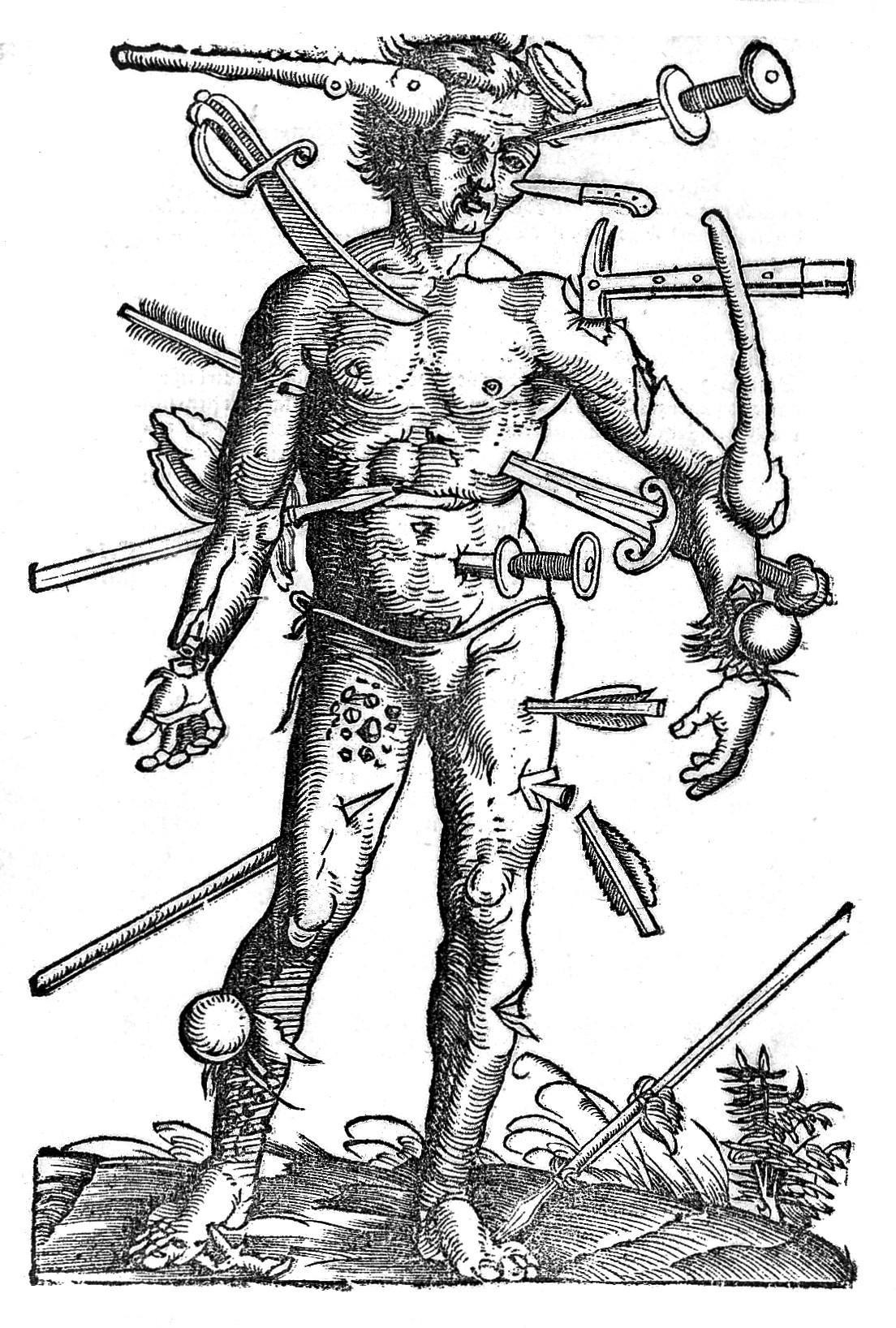 Wound-man,_16th_Century_Wellcome_L0010200.jpg