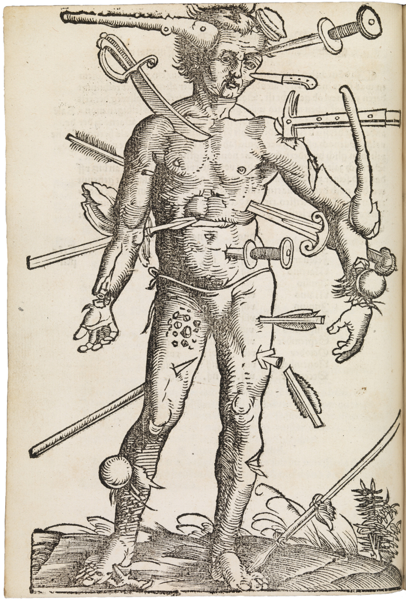 'Wound Man' from  Feldbuch der Wundarznei  (Fieldbook of Surgery), written by Hans von Gersdorff in 1531