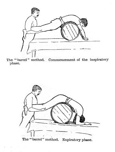 Artificial_respiration_by_rolling_a_man_prone_on_a_barrel._Wellcome_M0017194.jpg