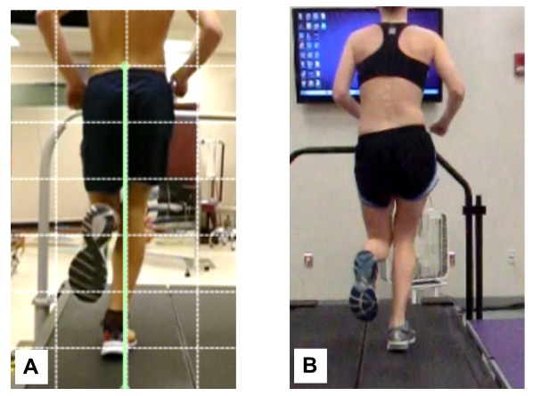 Figure 2:  Runner A demonstrates a narrow step width pattern and Runner B demonstrates a high hip adduction running pattern. Both increase strain in the ITB