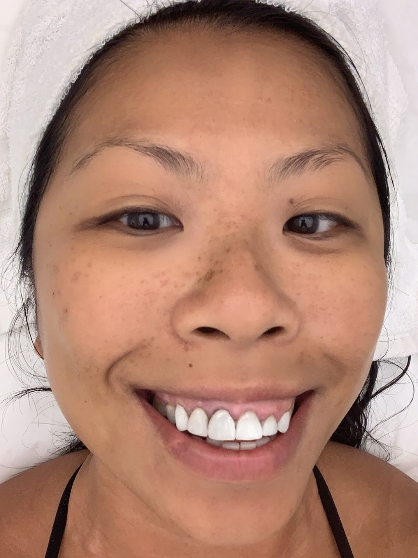 Dora Fung