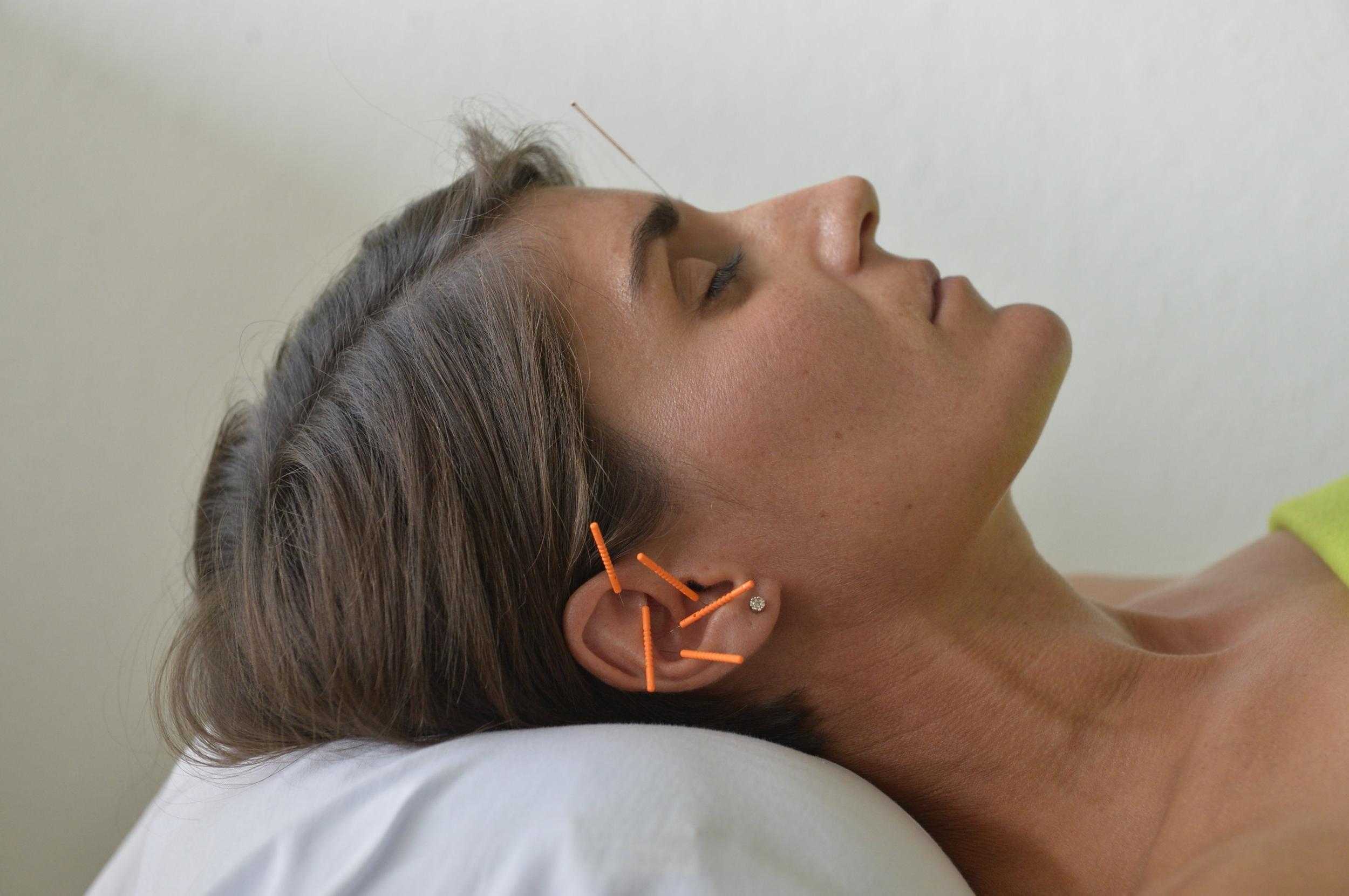- Akupunktur giver bedre livskvalitet og har gennem mange tusinde år vist gode resultater som behandlingsmetode ved en lang række sygdomme. Jeg tilbyder sygdoms- og smertebehandling med akupunktur, og min fornemste opgave er at lindre og afhjælpe netop dine problemer.Jeg er uddannet Akupunktør med baggrund i Traditionel Kinesisk Medicin (TCM) og sundhedsautoriseret sygeplejerske med specialviden inden for smertebehandling og palliation.