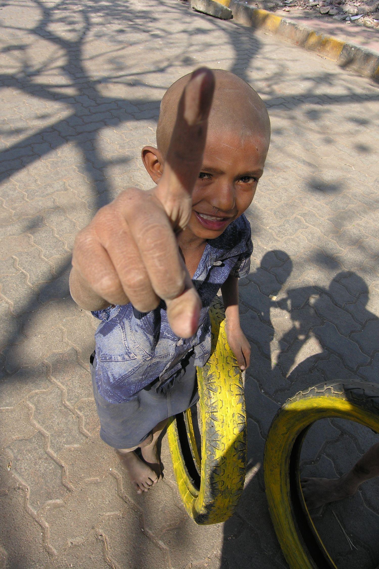 Dharavi | Sick child | Mumbai - Bombay | India | Dharavi, the biggest slum of Asia | Over one million people live in Dharavi |©sandrine cohen