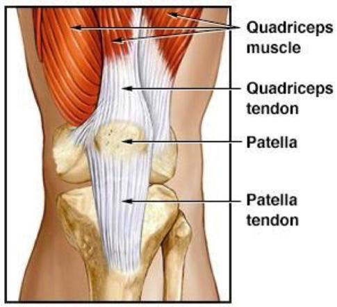 quadricep-tendon-rupture-injury