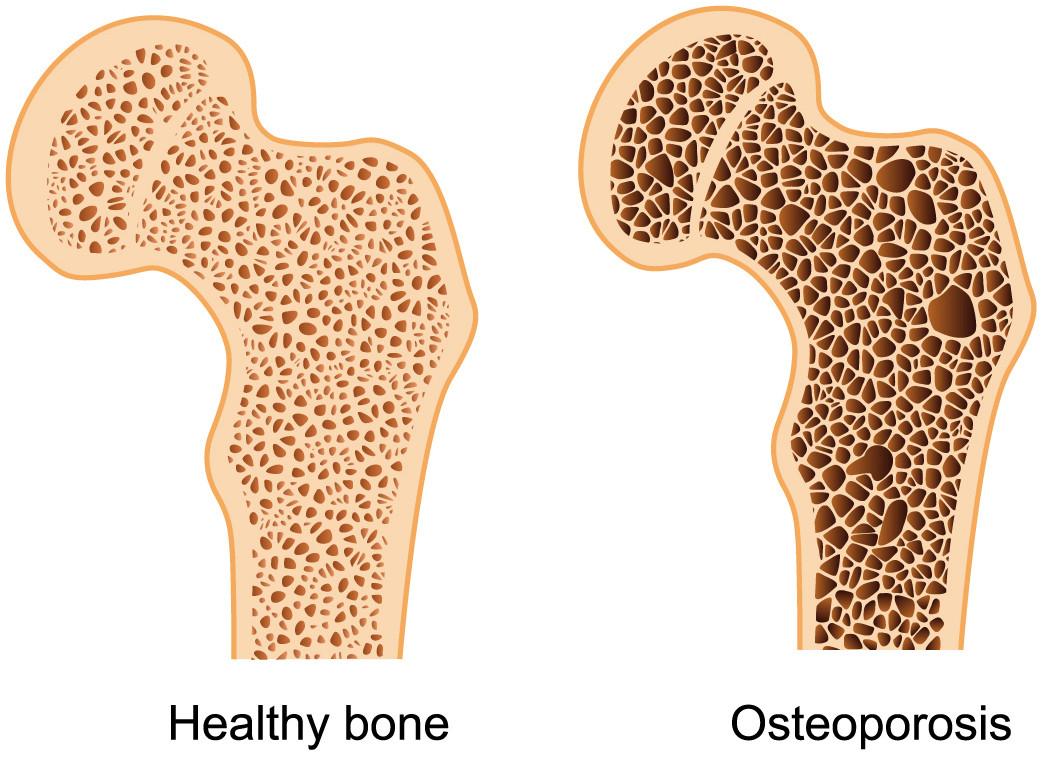 healthy-bone-osteoporosis.jpg