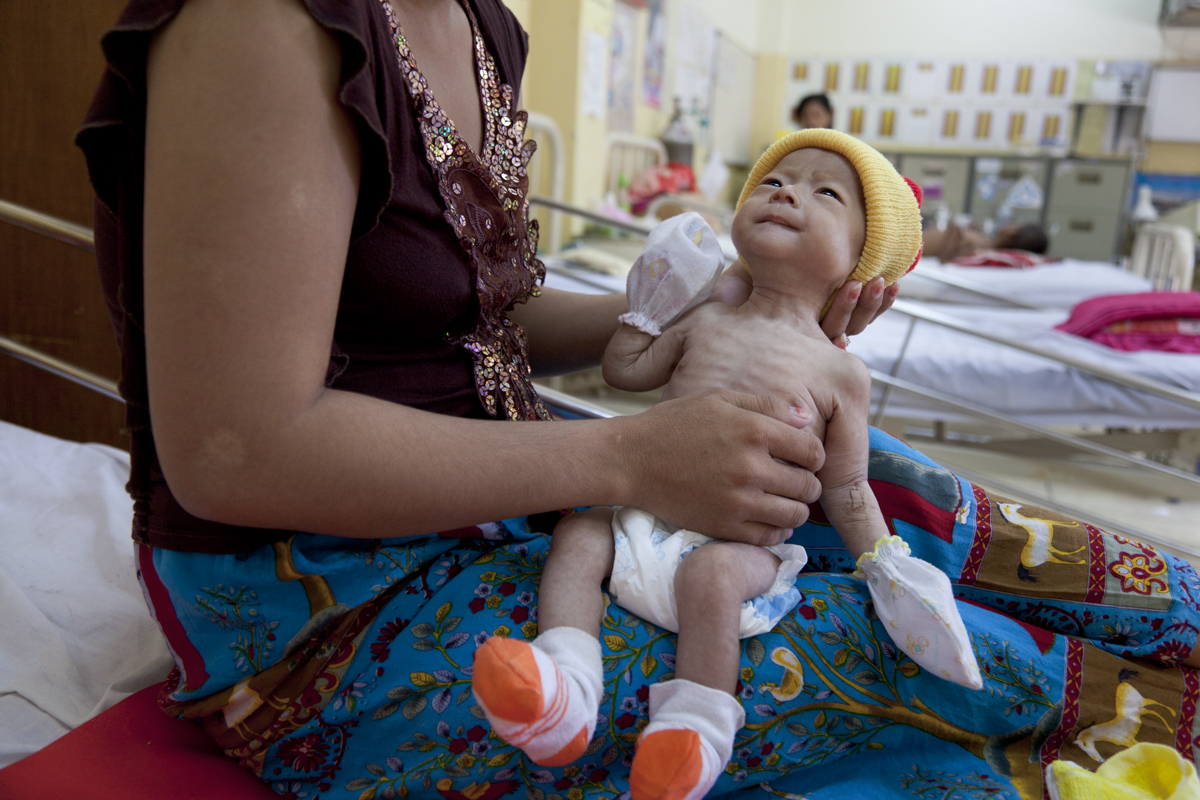 Sop Phally (2.5mths) who suffers from HIV/AIDS and malnutrition with her carer Mok Sophaly at the National Paediatric Hospital, Phnom Penh.