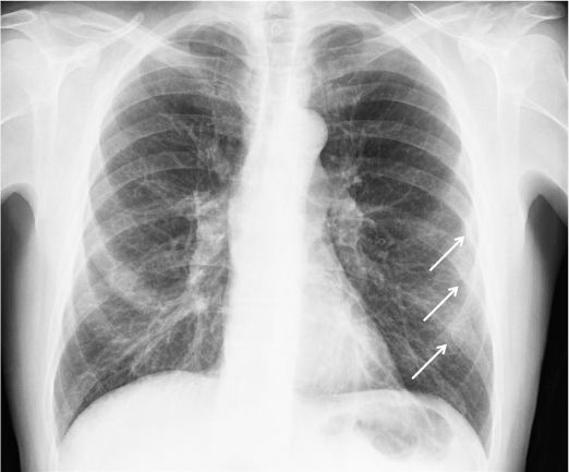 pulm-contusion.jpeg