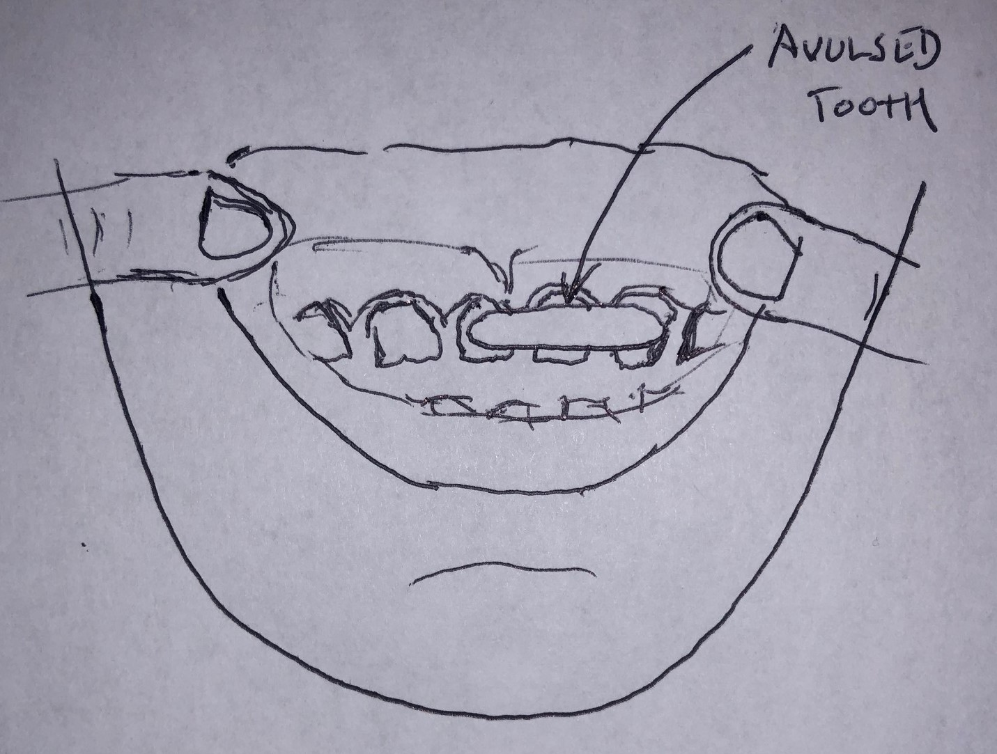 tooth-drawing.jpg