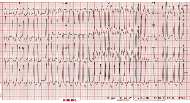 Example of EKG of WPW with afib