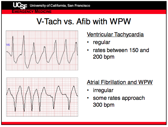 Vtach vs Afib in WPW