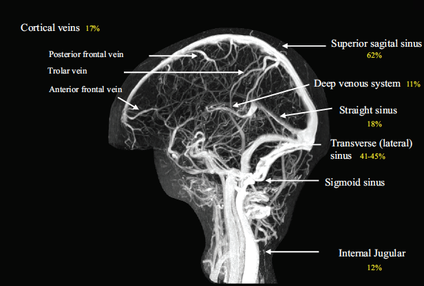 MRV-of-Cerebral-Venous-System-Saposnik-2011.png