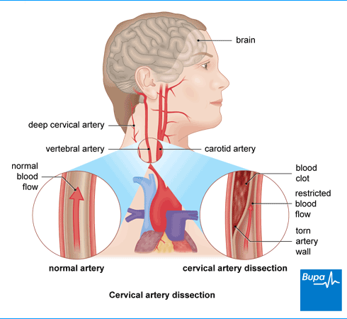 cervical-artery-dissection.png