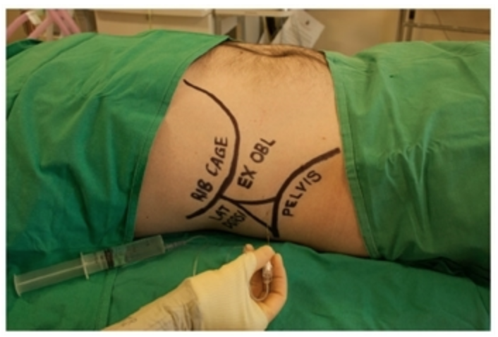 Figure 1: Surface landmarks that should be palpated include the inferior costal margin and the iliac crest.