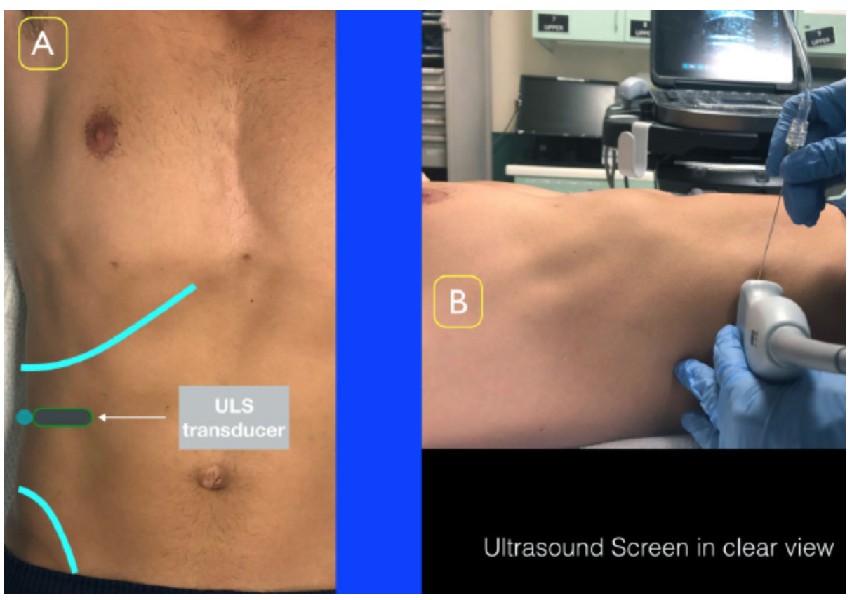 Figure 2: Place the ultrasound transducer between the inferior costal margin and iliac crest. The probe marker should point lateral/posterior.