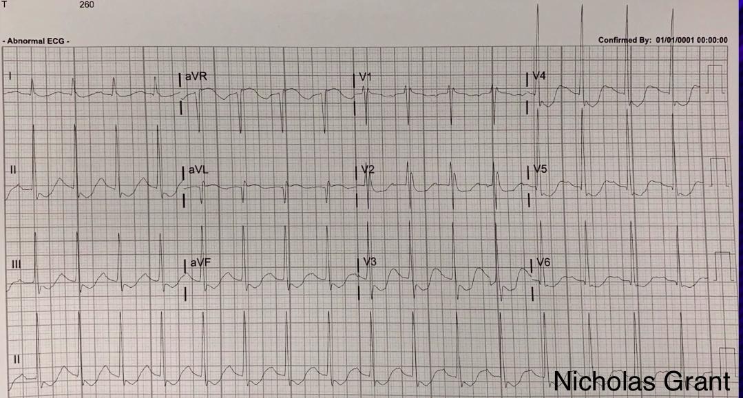 EKG3.png