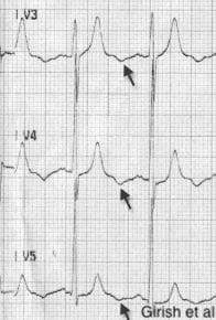 EKG6.jpg