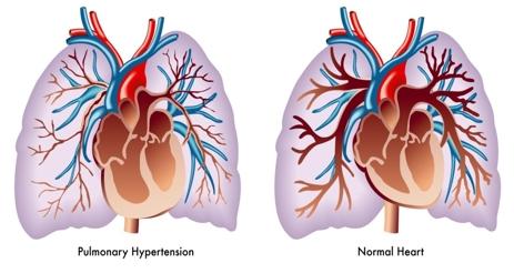 pulmonary hypertension news.jpg