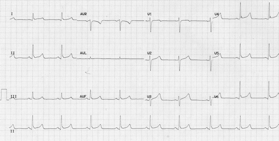 EKG1.1.png