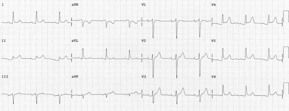 EKG1.2.png