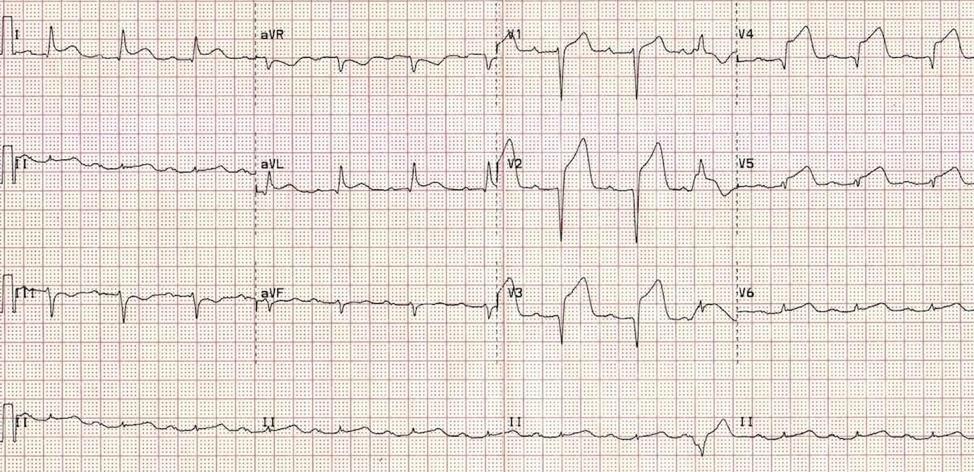 EKG1.3.png