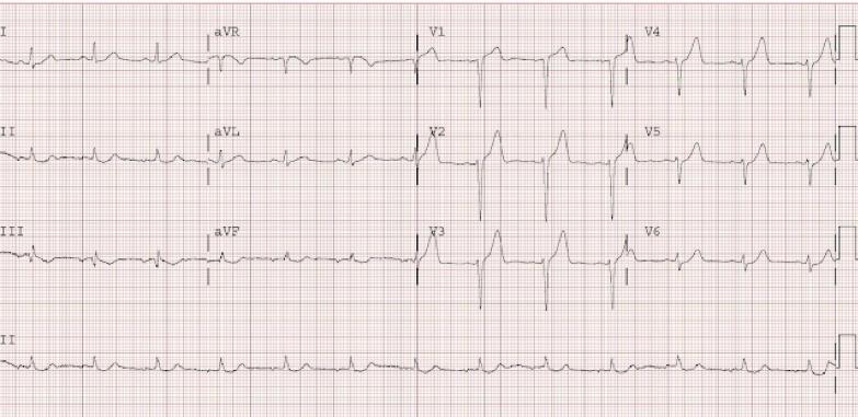 EKG1.4.png