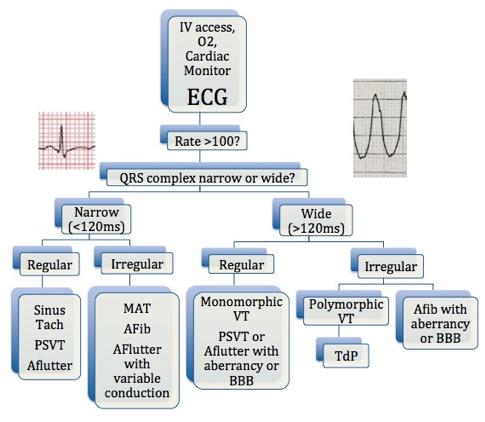 Tachydysrhythmia Algorithm