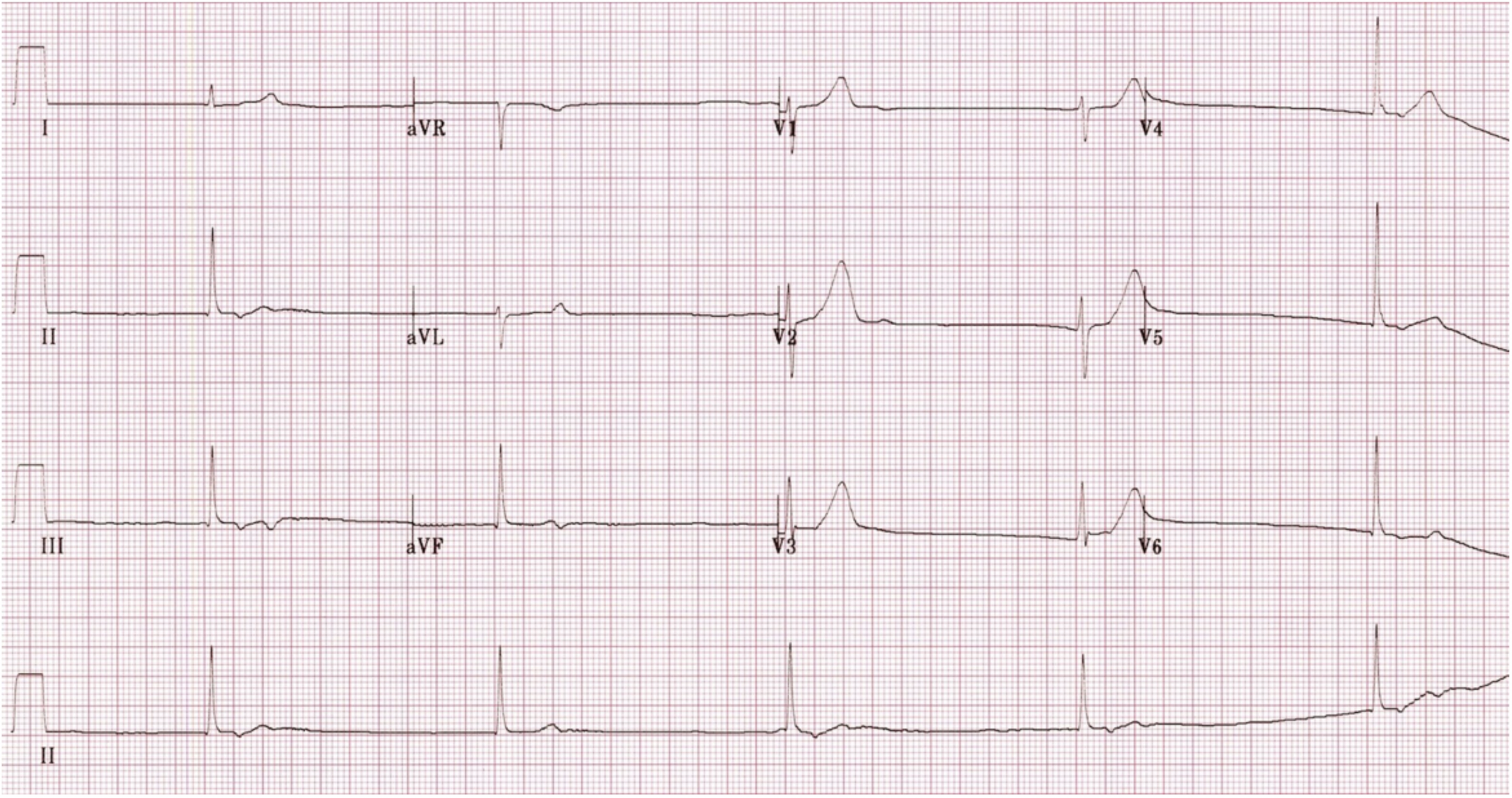 1. What's the rhythm?  2. What's the differential for bradycardia?  3. Think tox – now narrow your differential. What do the vitals suggest?  4. How do you want to treat this patient?